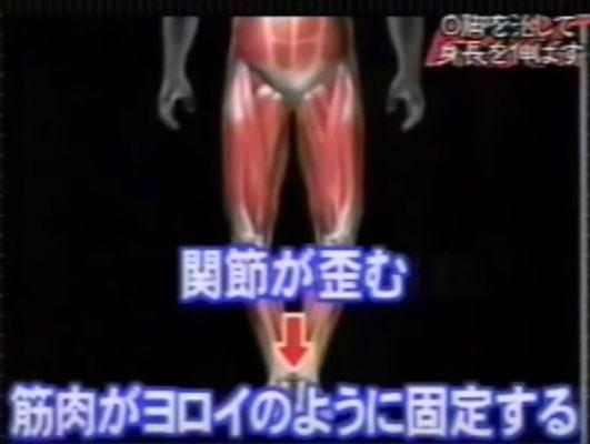 O脚原因2