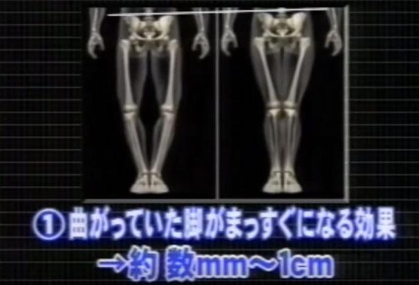 曲がっていた脚がまっすぐになる効果 約数mm~1cm