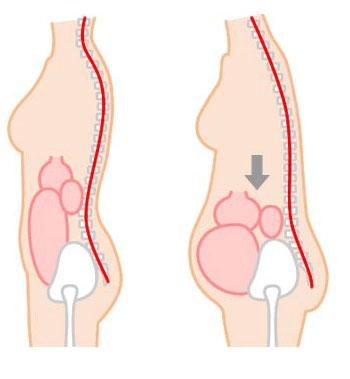 レグール骨盤底筋1